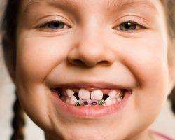 Профессиональный детский ортодонт в Киеве