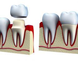 Установка коронки лучше всего для восстановления утраченных зубов