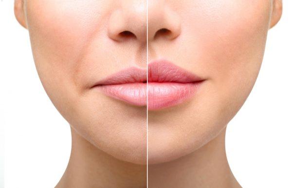 Коррекция формы и размера ваших губ