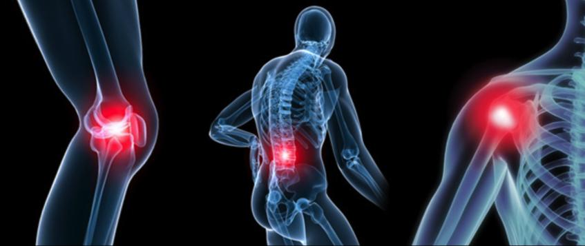 Консультации и лечение остеоартроза в  Институте ортопедии и травматологии